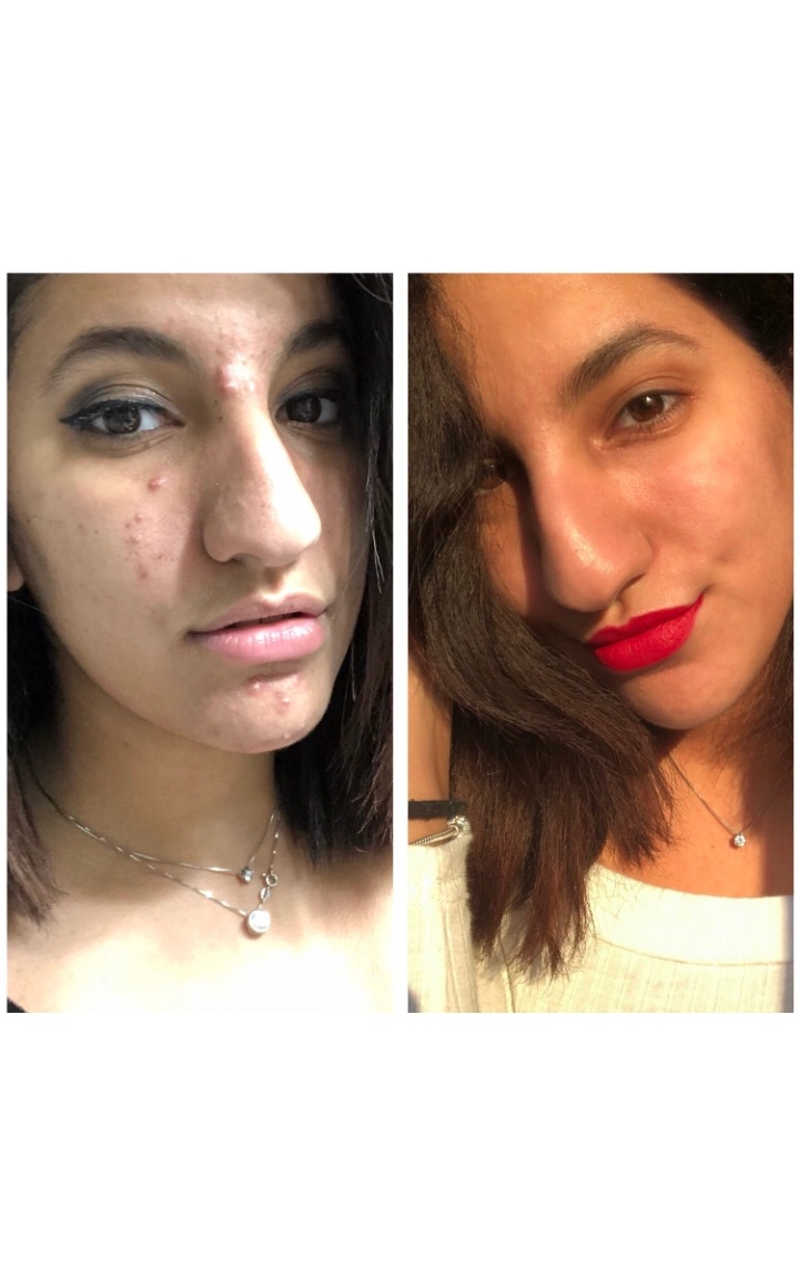 Get flawless skin with:Curology